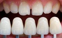 Combien coûte la fabrication et la pose de facettes sur les dents de devant en dentisterie