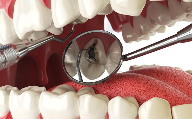 Signes, symptômes et traitement de la pulpite de la dent