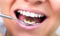 Comment mettre un appareil dentaire sur les dents: types, conditions de port et d'installation