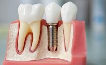 Implants dentaires: types, coût et installation