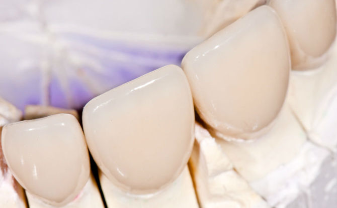 Couronnes sur les dents de devant: types de fabrication et prix de revient