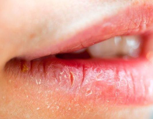 På læberne svamp Forkølelsessår i