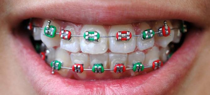 Bretelles pour l'alignement des dents