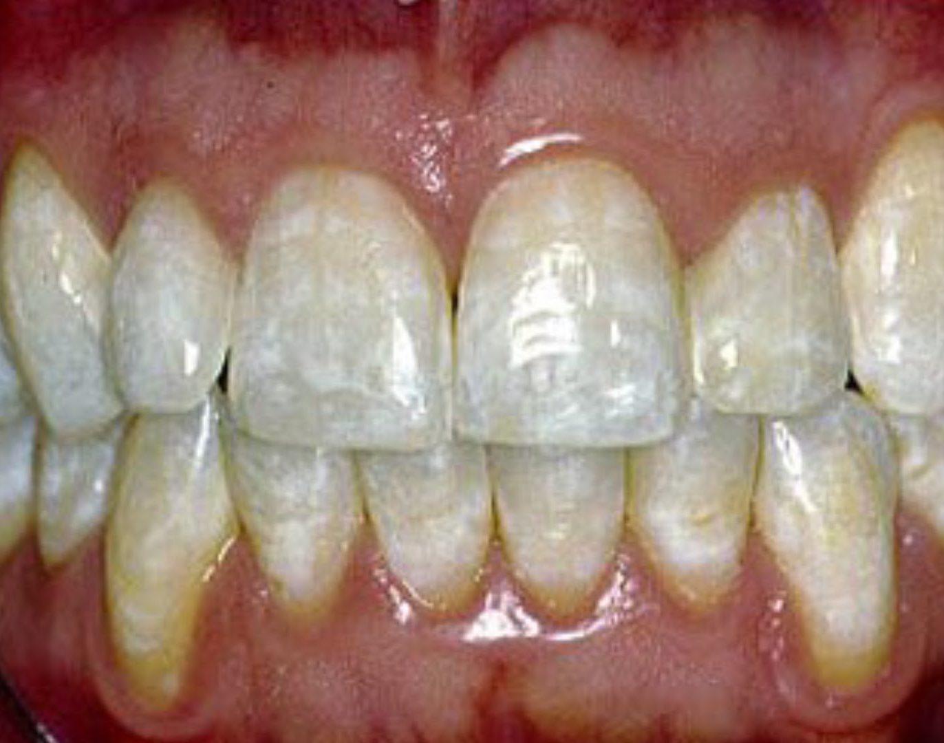 Zähnen auf weiße flecken den Weiße Flecken