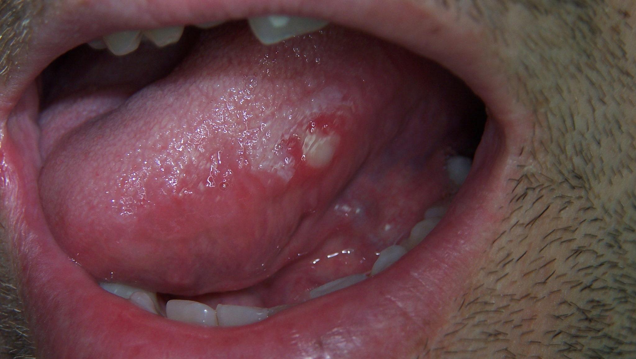 Kræft på tungen