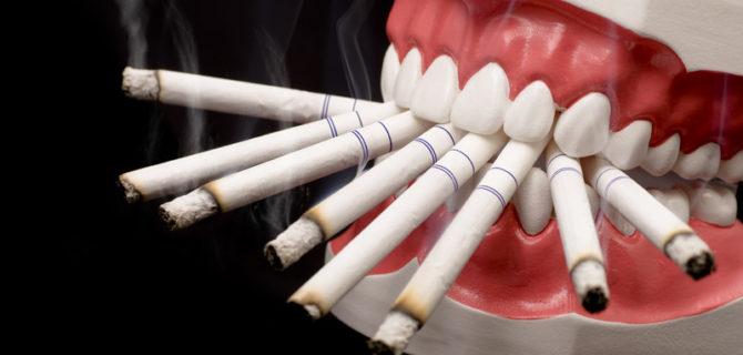 Tabagisme après extraction dentaire