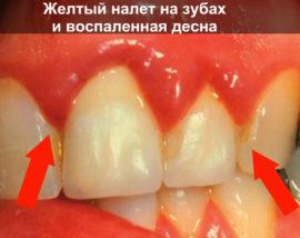 Plaque sur les dents et les gencives douloureuses
