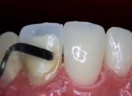 Application de matériau composite sur la dent