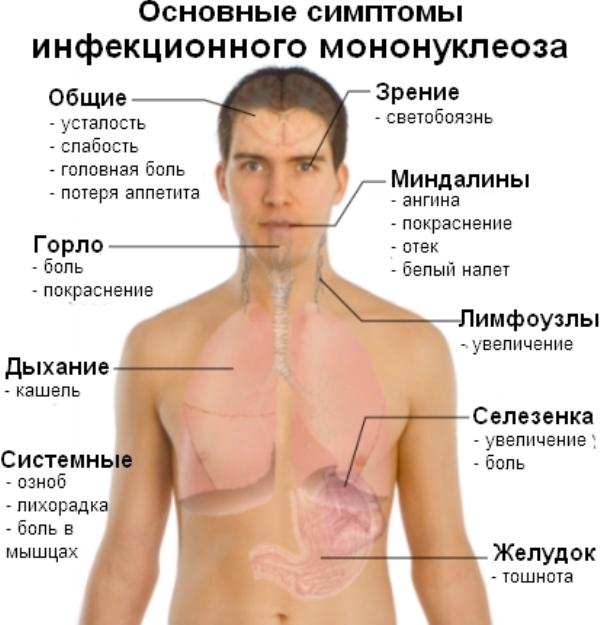 Les principaux symptômes de la mononucléose infectieuse
