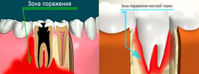 Ostéomyélite de la mâchoire