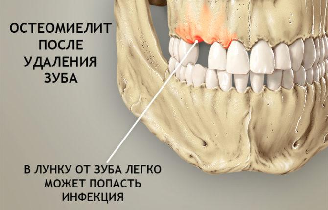 Ostéomyélite après extraction dentaire
