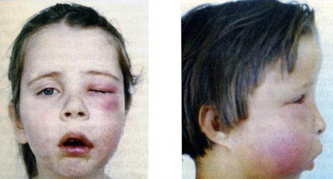 Ostéomyélite odontogène aiguë chez un enfant