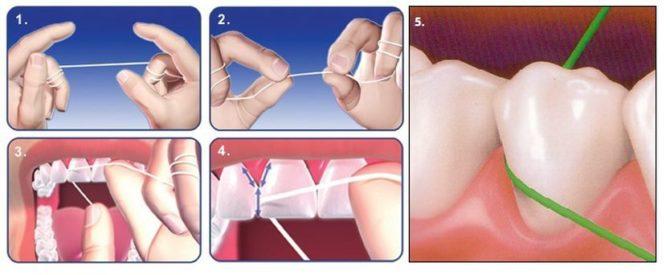 Règles d'utilisation de la soie dentaire
