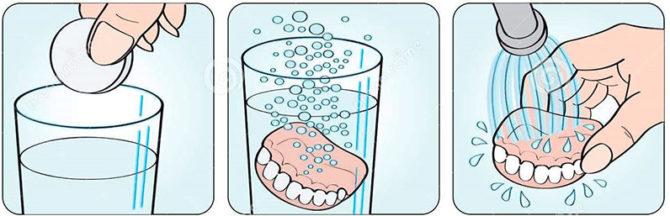 Règles d'utilisation des comprimés pour la désinfection des prothèses