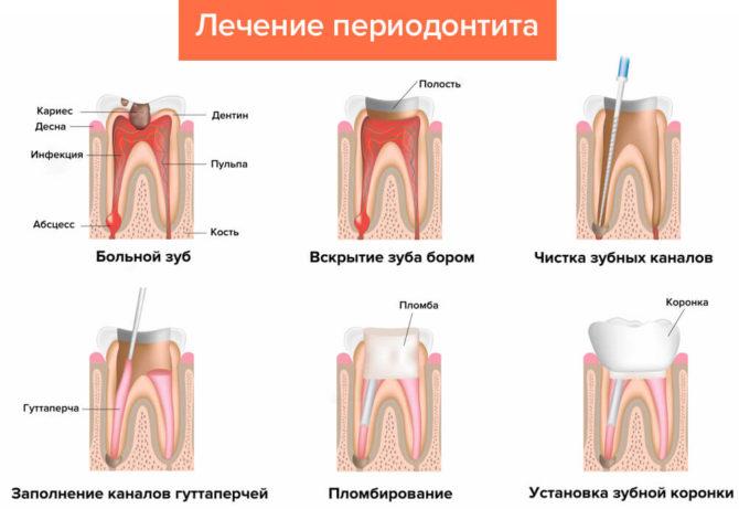 Schéma de traitement de la parodontite