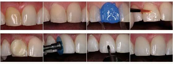 Le schéma d'application d'un matériau composite sur la dent