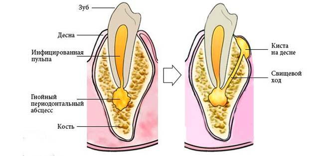Schéma de la formation de kystes sur la gencive