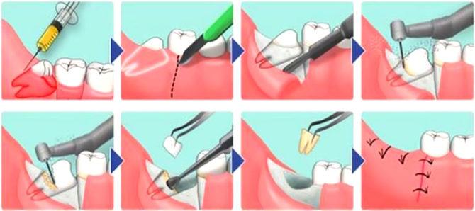 Schéma complexe d'extraction des dents de sagesse