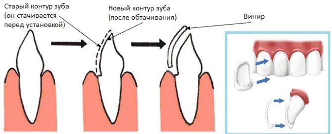 Schéma d'installation du placage