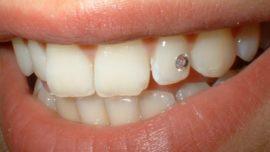 Skyce sur la dent