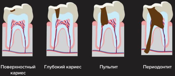 Stades de carie dentaire