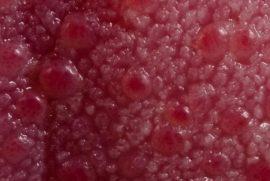 Une section de la langue avec des taches de sang rouge au microscope