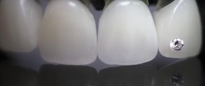 Décoration de dent
