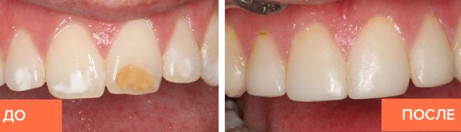L'apparition de la dentition avant et après la pose de facettes composites