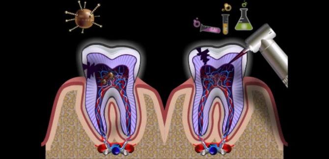 Inflammation des racines des dents