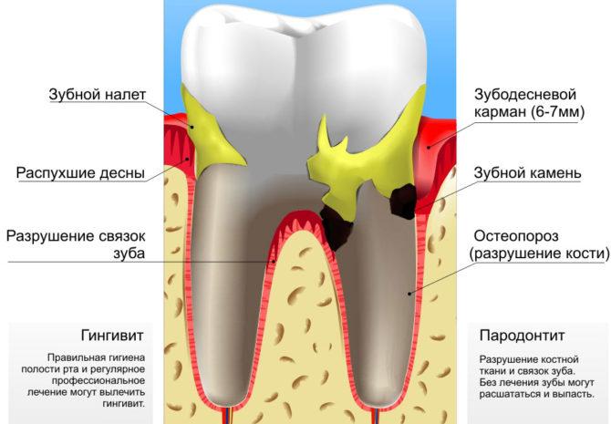 Maladie parodontale inflammatoire
