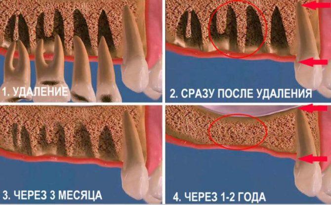 Guérison du trou après extraction dentaire