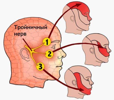Zones d'innervation du trijumeau