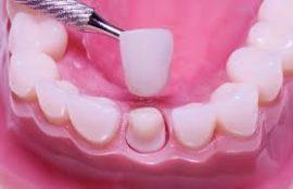 Couronne de dent