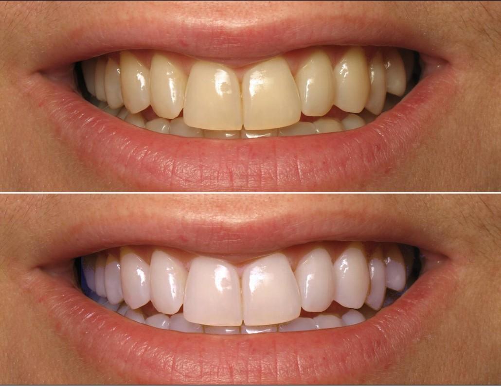 Estetska stomatologija nis