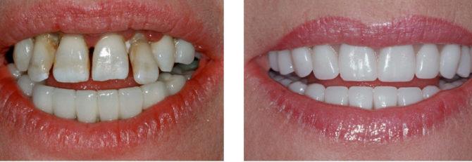 Dents avant et après la pose des facettes