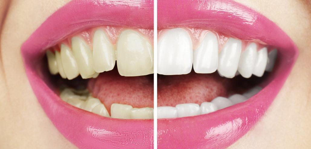 Листерине за избјељивање зуба
